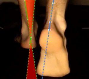 examen biomécanique de la marche par un podologue