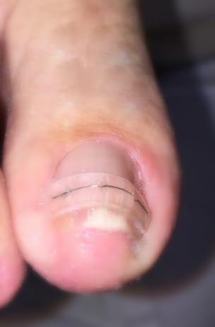 orthonyxie - appareillage curatif pour soigner les déformations de l'ongle