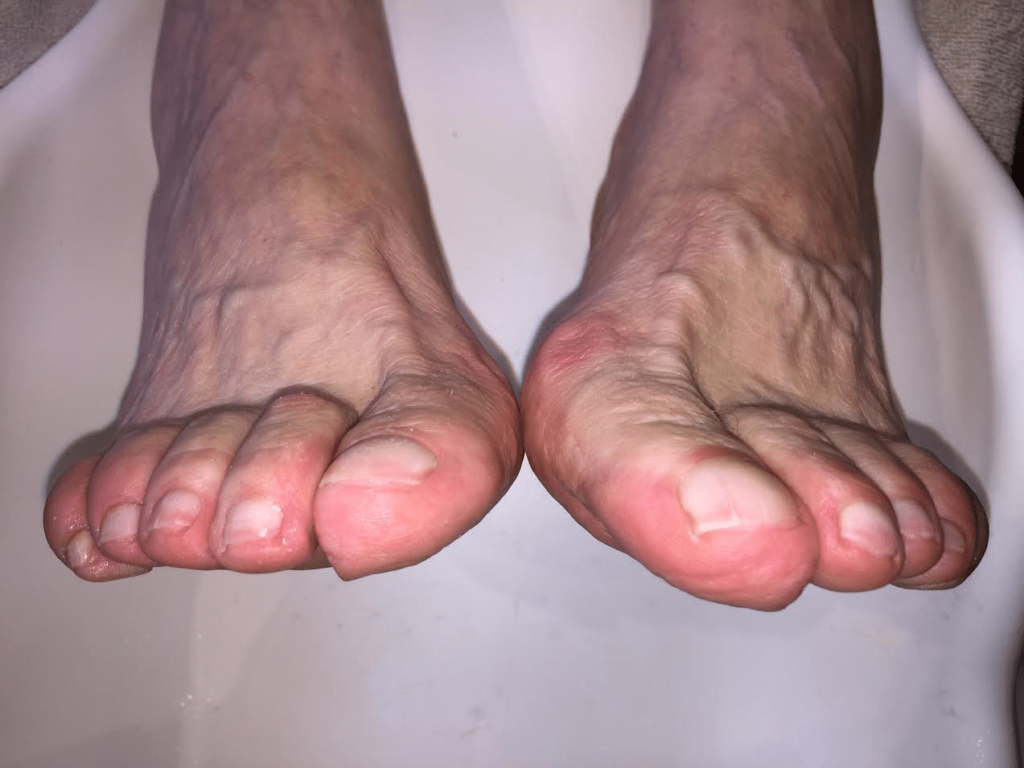 traitement des pathologies des orteils par un podologue