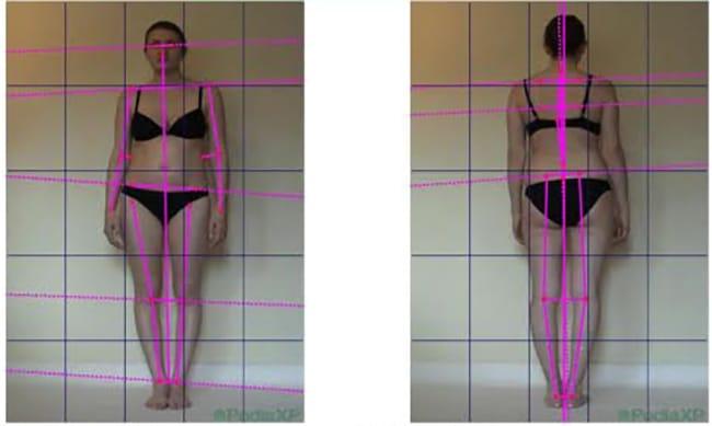 les différentes étapes du bilan postural par un podologue
